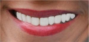 """""""Glimlach, geluk staat je fantastisch"""""""